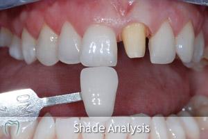 Crown Shade Analysis