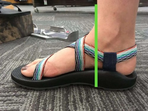 ea42f7191f66 Size 9 Chacos showing how support is too far behind subtalar joint. Not  providing proper support.