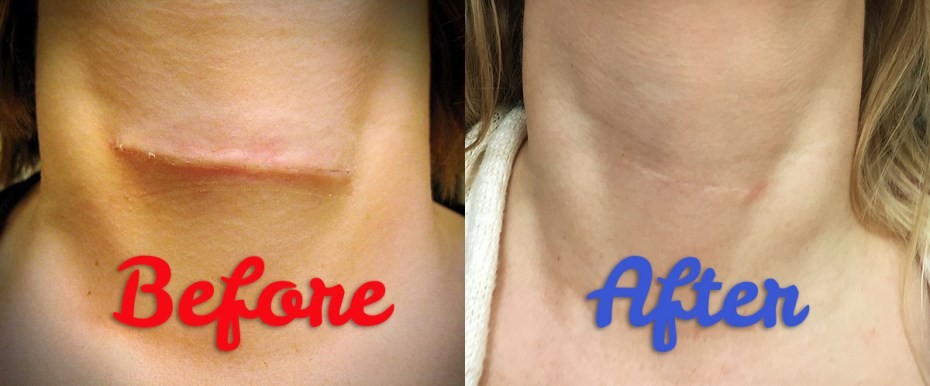 how-to-minimize-scar
