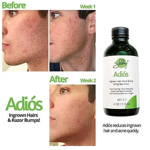 Adios: Ingrown Hair, Razor Bump & Oily Skin Tonic Before and After