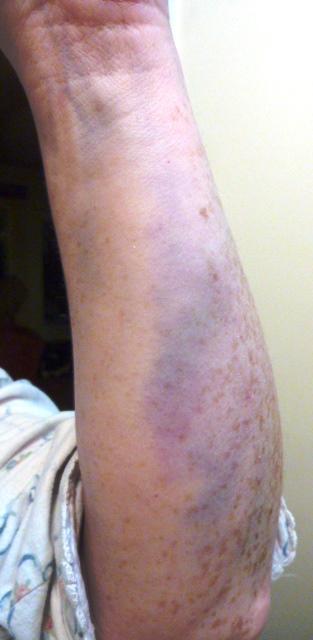 Bruised Arm New Years 2014
