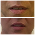 Before and After Dr R Lips 2016