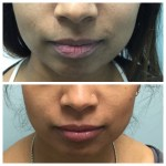 Before and After Dr. R Lips 2016