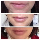 Sheri-lips