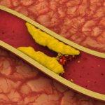 Kolesteroli – Cka Nuk Keni Dite E Duhet Te Dini