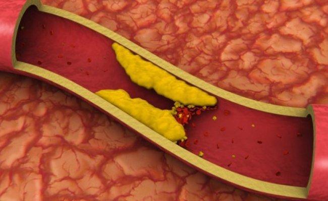 kolesteroli_kolesterina