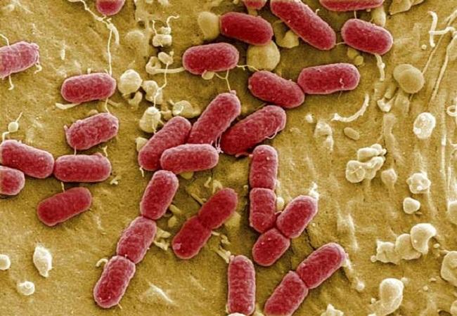semundjet dhe infeksionet