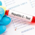 Hepatiti C
