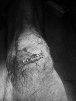 Franken-knee