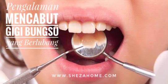Pernahkah mengalami problematika serius dengan bagian mulut bernama gigi  5bf6486e2d