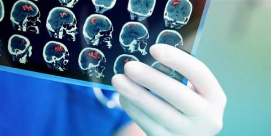 ölümden sonra beyin