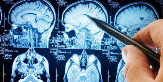 insan fare beyni