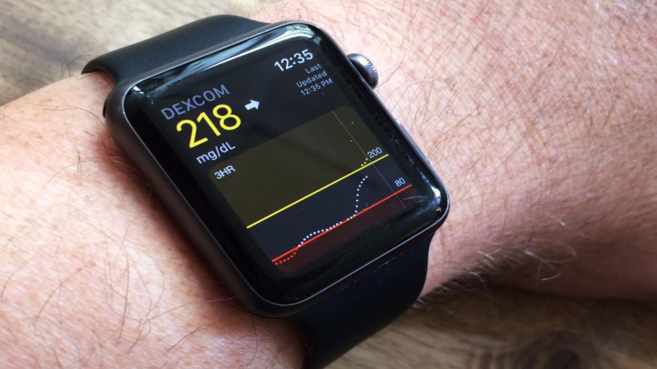 apple watch kalp atış hızı