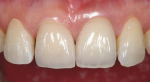 porcelainVeneer. Implant superstructure