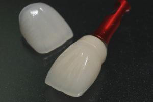 porcelain veneer・implant superstructure