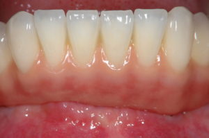 Gingival part imitated with porcelain