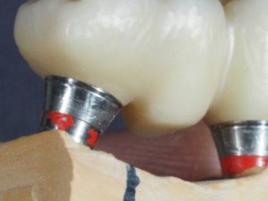dental prosthesis zirconia bridge