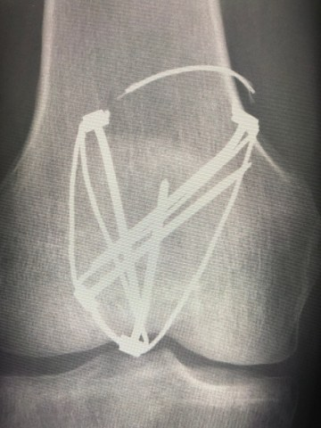 knee-fracture-surgery-3