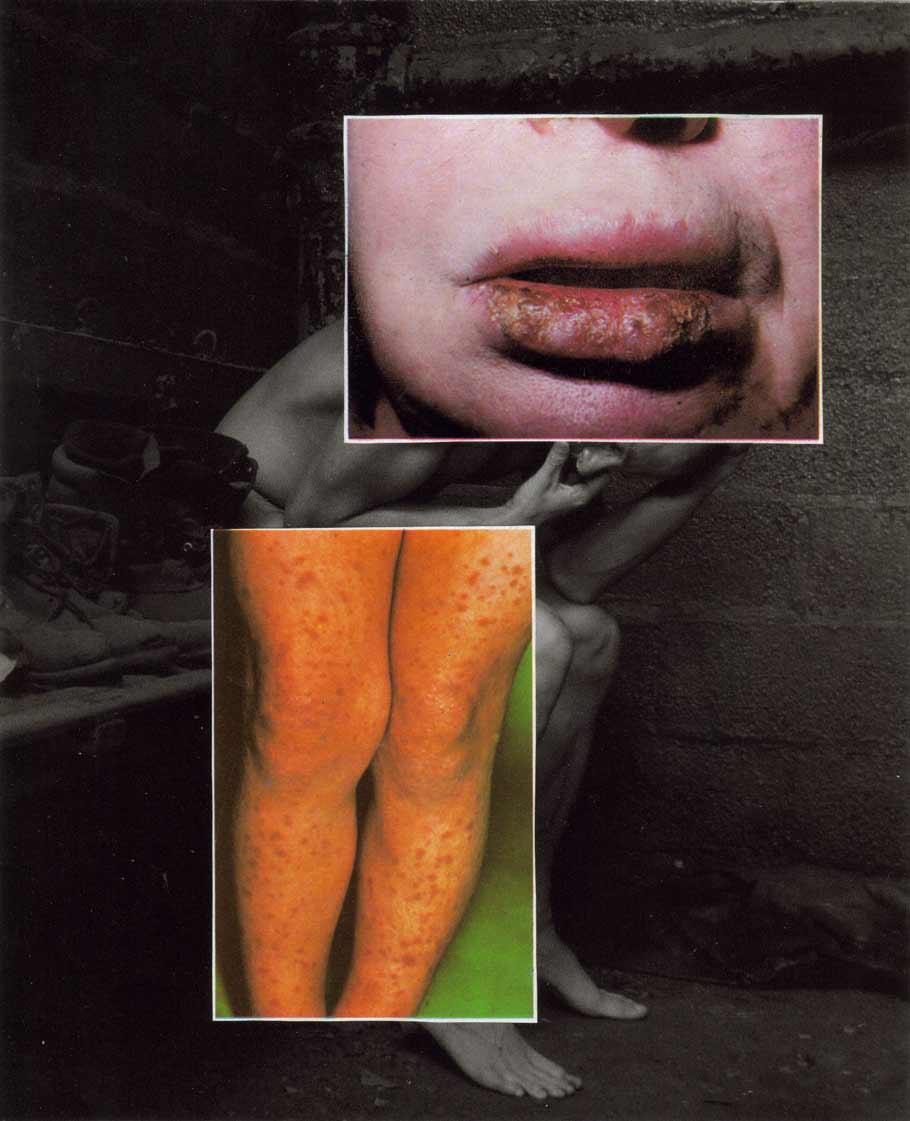musta-fior-sciences-Sick-#-4