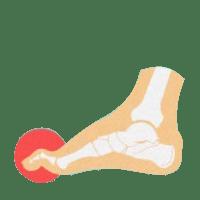 Молоткообразное искривление пальцев ног