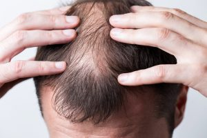 revivexil joniline glatzenbildung