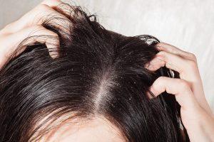 med planta regulatory schuppen fettige haare