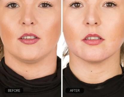 ChinUp lõuaaluse maski hoolduse tulemused enne ja pärast