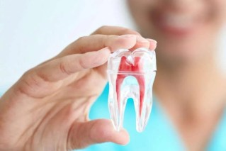 Root Canal Therapy | Dentist Doncaster