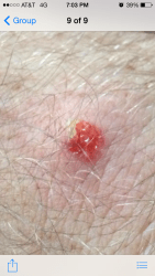 spider bite santa cruz