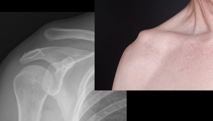 radiograph-and-deformity-after-a-type-iii-acj-separation