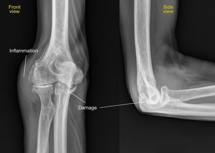 Radiograph RA