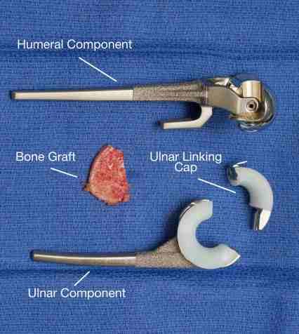 photographs-of-implants-and-bone-graft