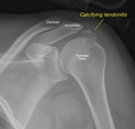 Radiograph shows an area of calcifying tendonitis.jpg