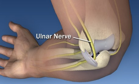 the-ulnar-nerve-needs-to-be-move-to-some-extent-to-safely-perform-elbow-replacement-surgery