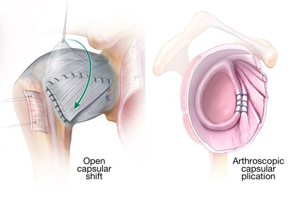 Open capsular shift and arthroscopic capsular plication.jpg