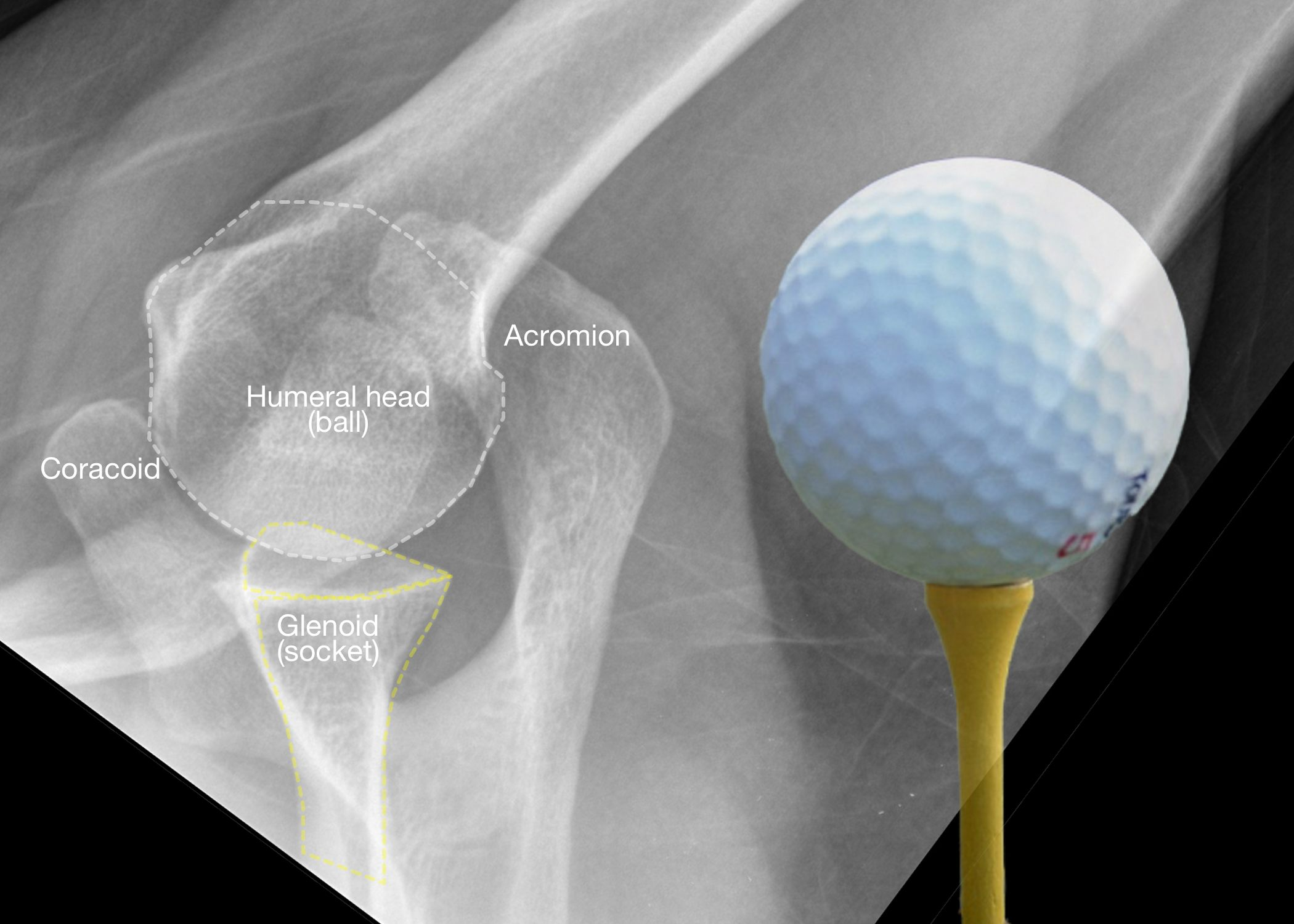 Shoulder Multidirectional Instability MDI What is it
