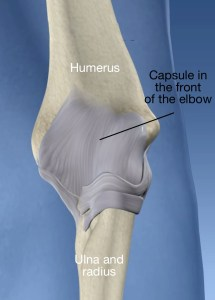 thickened-elbow-capsule