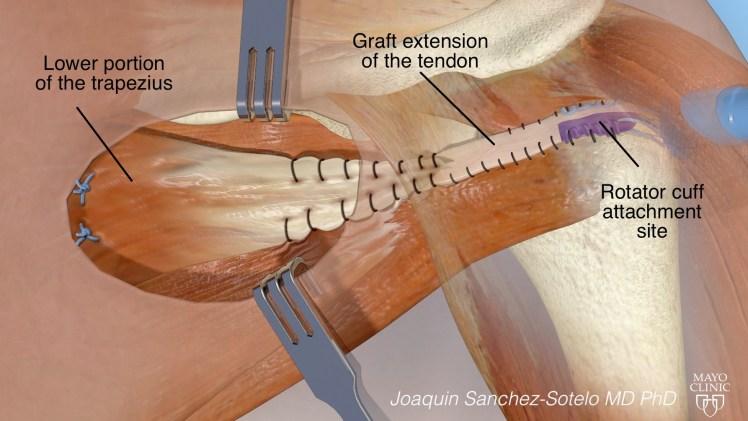 Arthroscopically assisted lower trapezius transfer.jpg