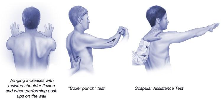 Physical exam serratus anterior