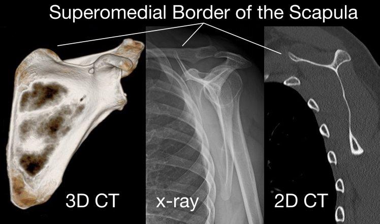 Superomedial border of the scapula.jpg
