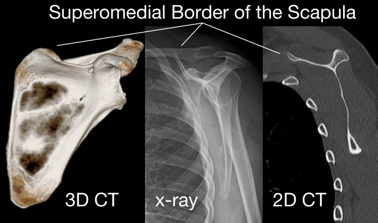 Superomedial border of the scapula.jpg