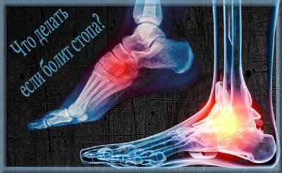 Болит нога в области стопы сверху что делать?