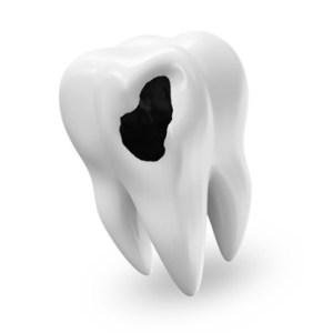 к чему снится раскрошившийся зуб