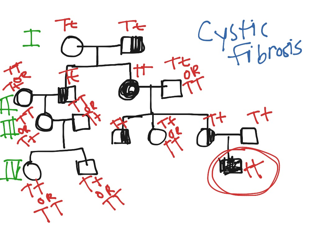 Cystic Fibrosis Pedigree