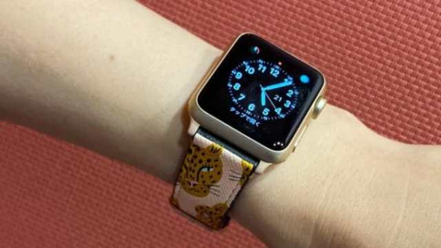 CASETiFY Apple Watch バンド