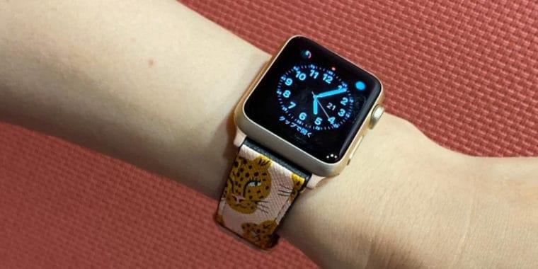 CASETiFY Apple Watch バンド