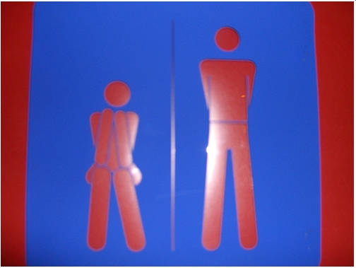prevalence and impact of shy bladder syndrome