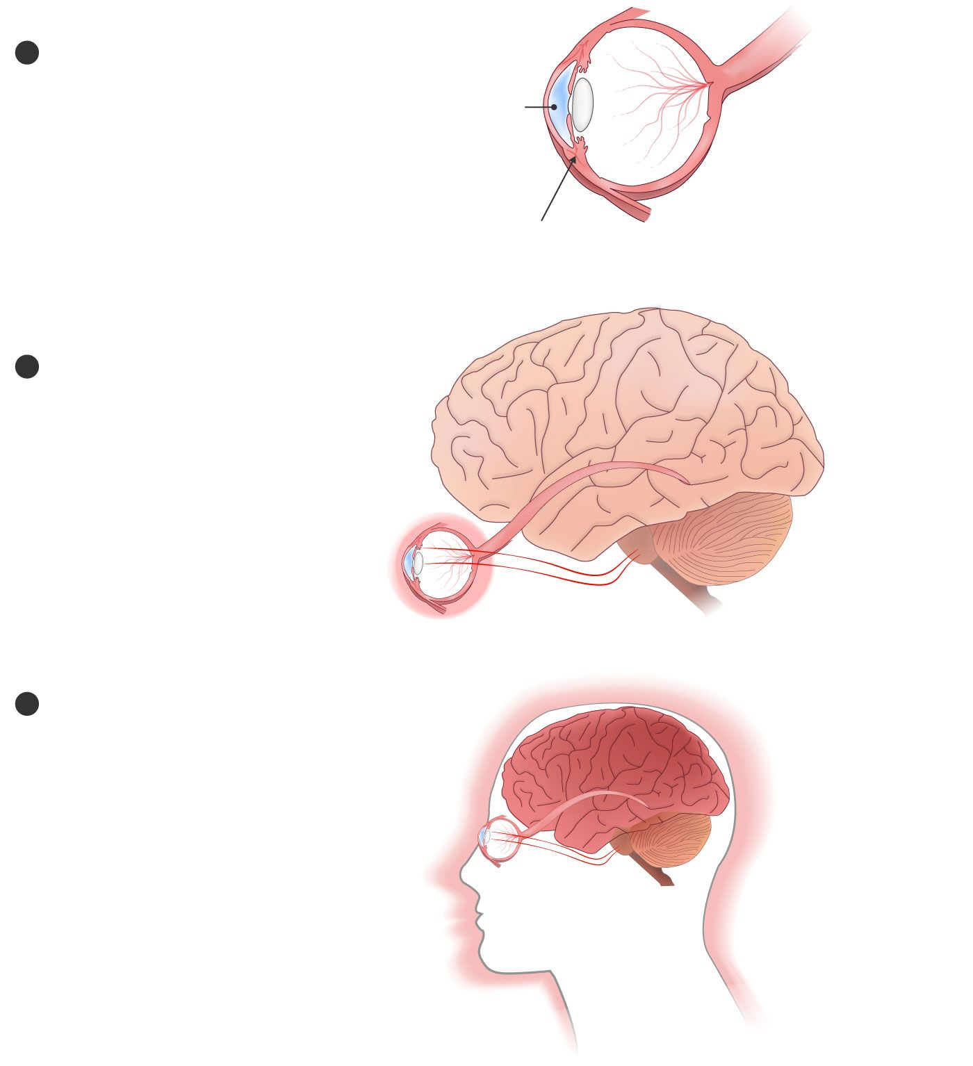 hight resolution of 3 over time pain centers in the brain can start firing on their own creating phantom pain in the cornea and areas other than the eye