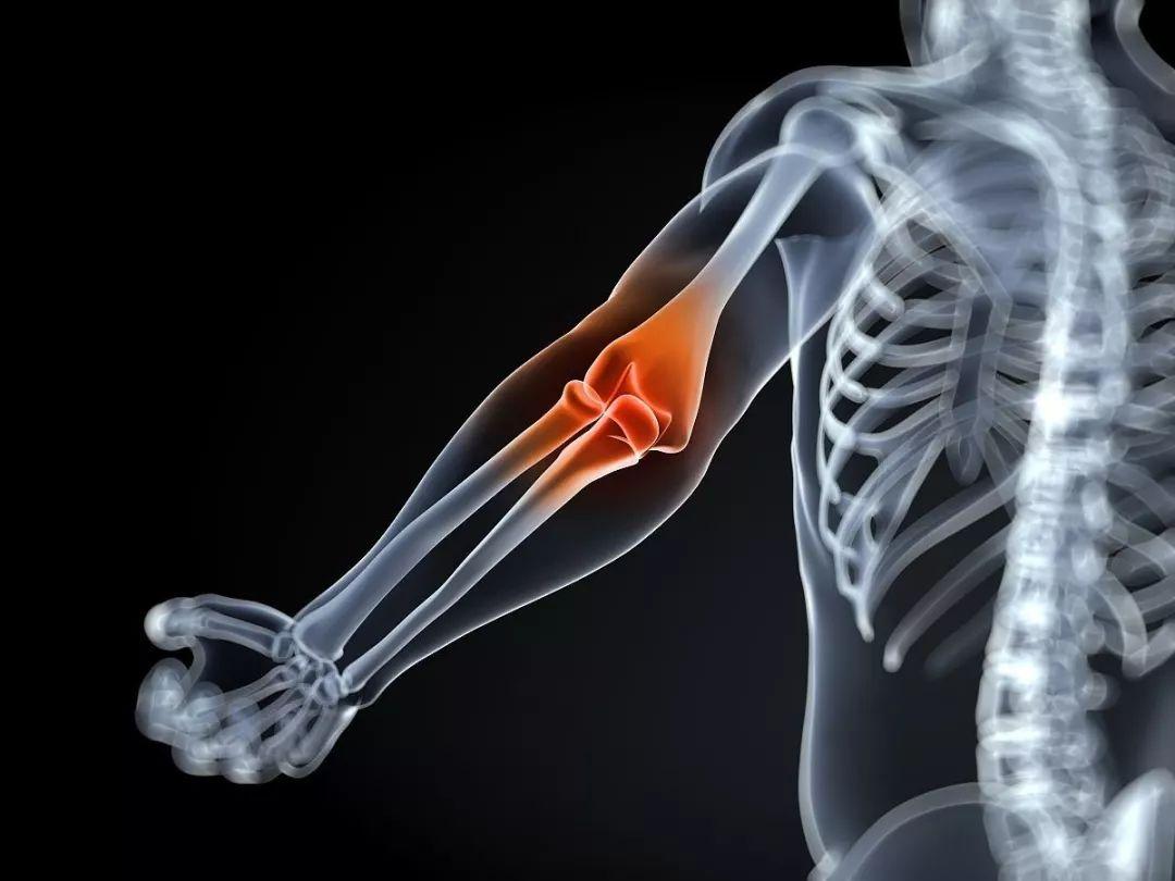 胳膊肘疼。是怎么回事?--北京德爾康尼骨科醫院www.dcn.org.cn