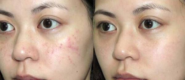青春遺留的痘疤痕,真可以去掉,原來就這麼簡單 - 每日頭條